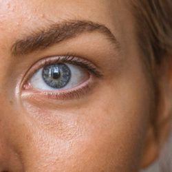 eliminating-eye-bags